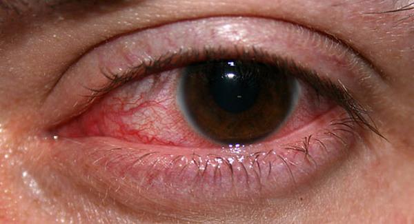 Самые явные симптомы кератита – покраснение глаза, сильные боли в нем, помутнение роговицы