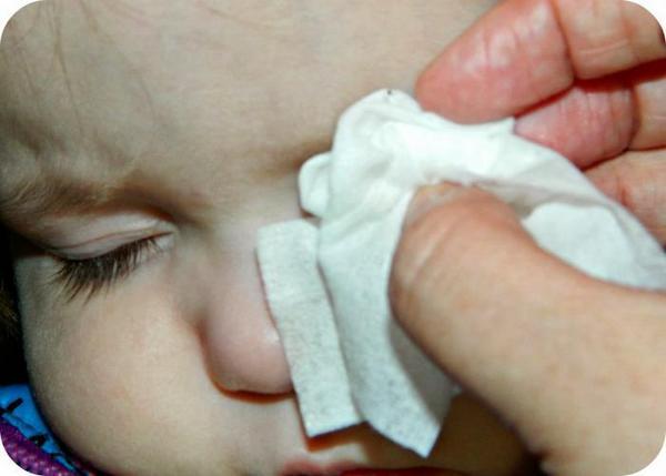 Удалять насекомое из глаза ребенка нужно аналогичными способами