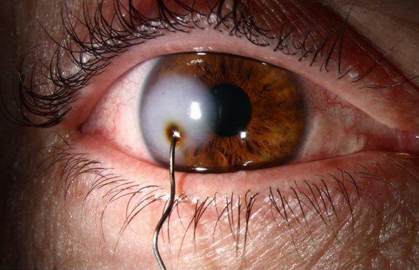 Ранения – одна из причин повреждения глаза