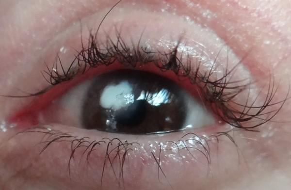 Роговица может вылечить «сама себя», однако в таком случае в глазу может остаться бельмо