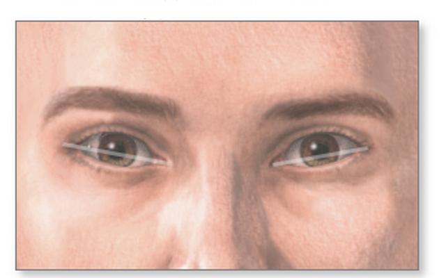 У некоторых людей раскосые глаза могут быть признаком определенных патологий