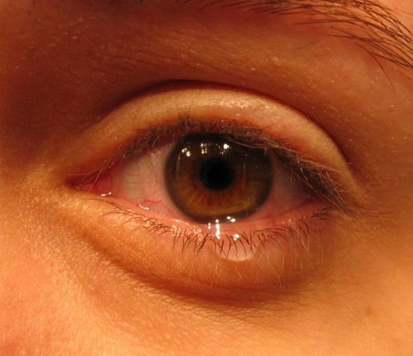 Осложненное течение заболевания: добавляется слезоточивость и припухлость века