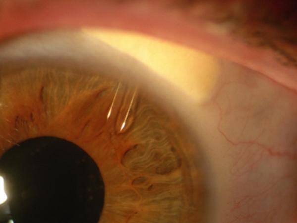 «Косопт» назначается пациентам, страдающим глаукомой