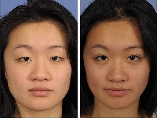 Исправить такой разрез глаз можно с помощью операции