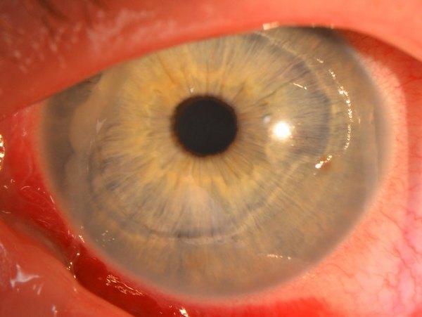 Эрозии роговицы – одна из причин проблем с глазами