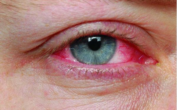 Глаукома является противопоказанием к использованию «Монтевизина»