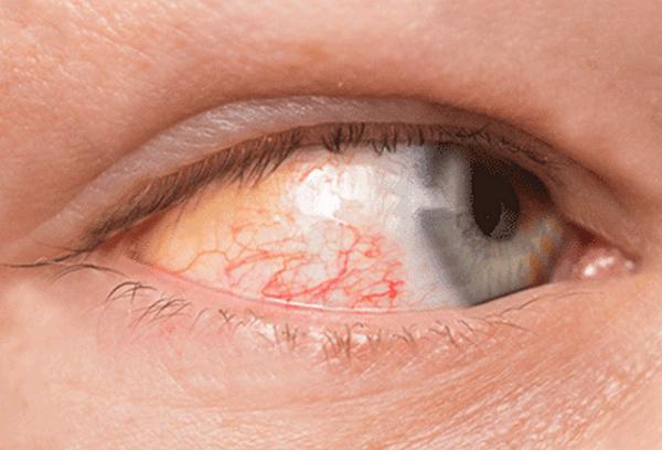 «Флоксал» способен справиться со многими патологиями глаза