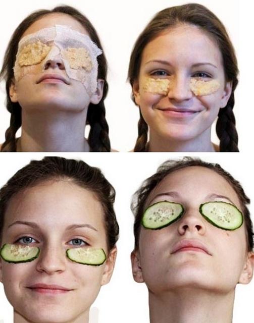 Чтобы быстро избавиться от припухлости под глазом, можно воспользоваться огуречными кружочками или нарезанным картофелем