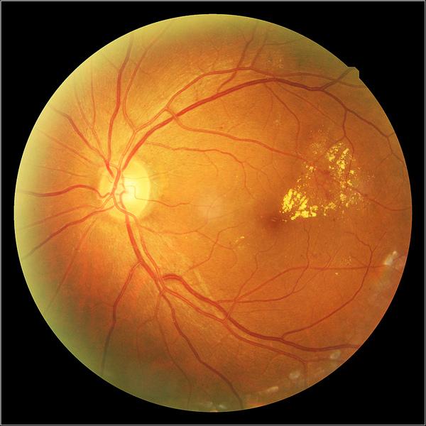 Глазное дно – крайне удивительная часть глаза