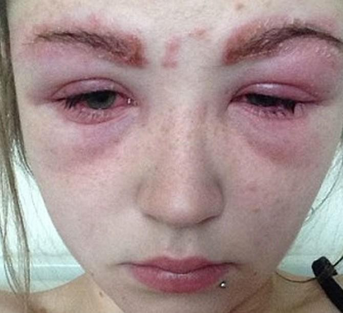 Как проявляется аллергия на наращивание ресниц: что ее вызывает и как предупредить