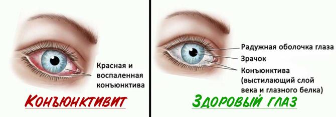 Желтое выделение из глаз у детей