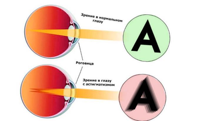 Зрение с астигматизмом
