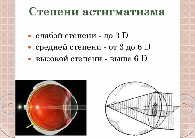 Сложный астигматизм