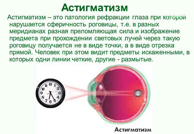 Смешанный астигматизм
