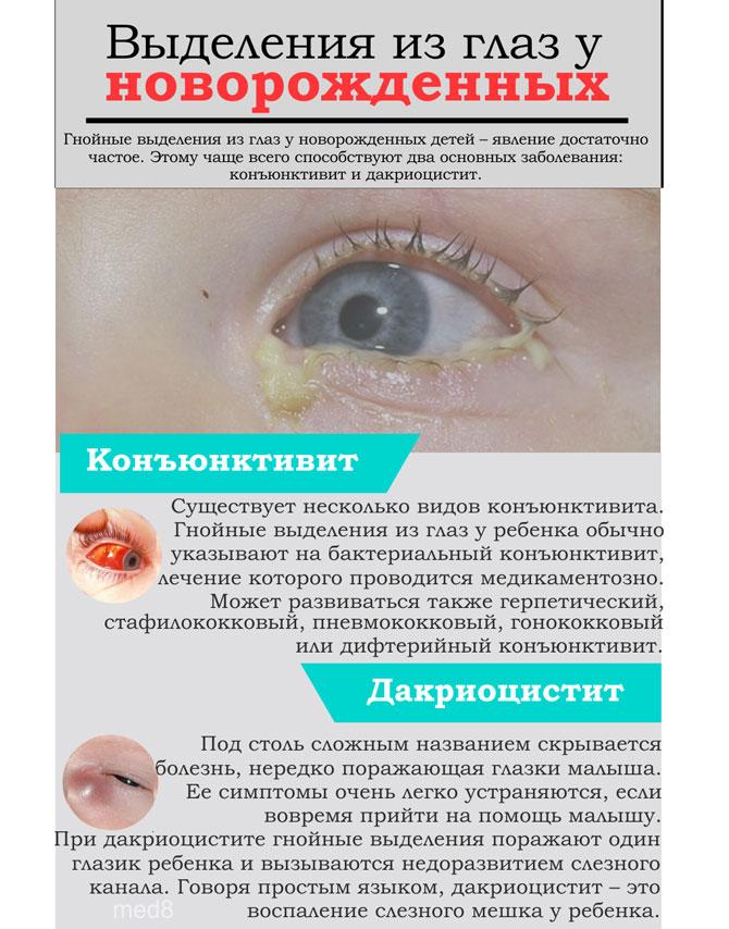 Коричневые выделения из глаз