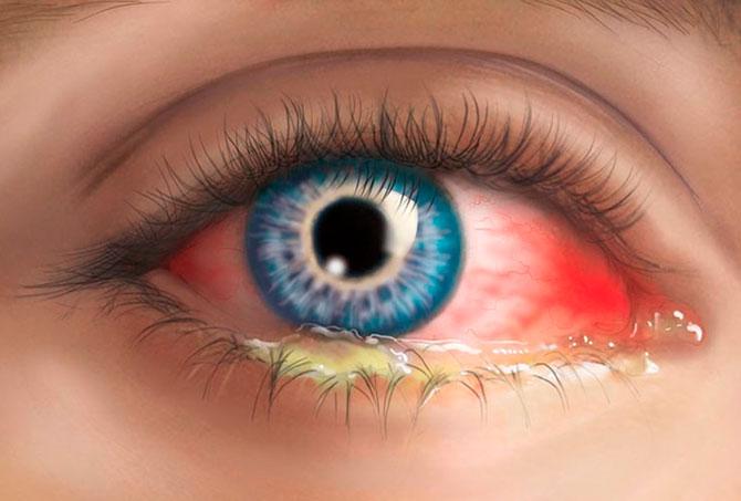 Гнойные выделения из глаз у ребенка