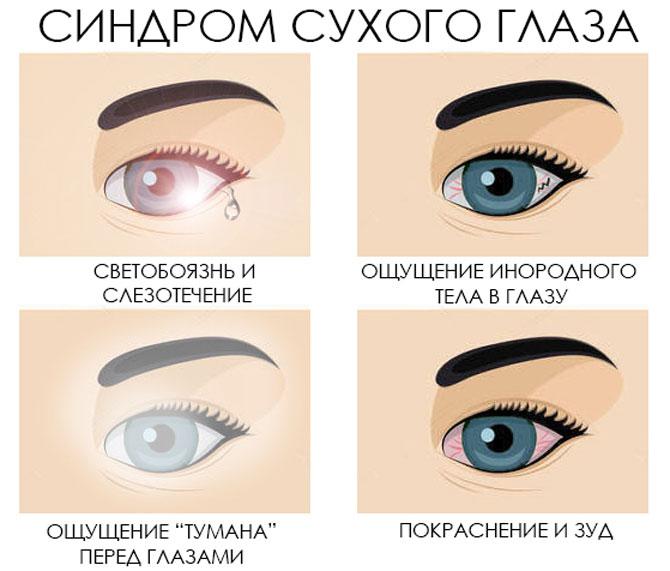 Щиплет глаза и слезятся