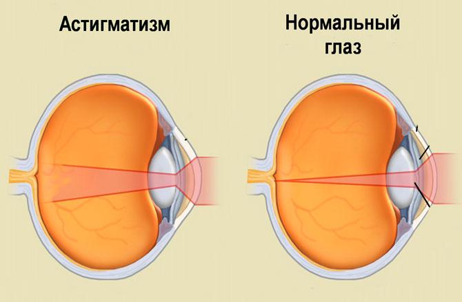 Список глазных капель при астигматизме у взрослых