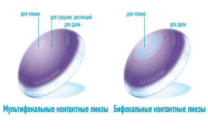 Мультифокальные и бифокальные линзы