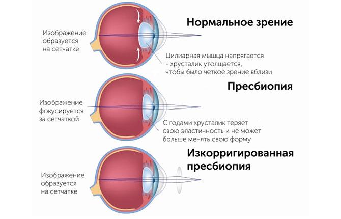 Преимущества и недостатки бифокальных контактных линз - ТОП-10 лучших моделей
