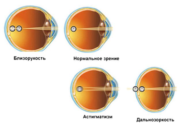Анатомия глаза человека - наружное и внутреннее строение
