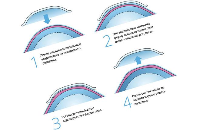 Преимущества мягких контактных линз