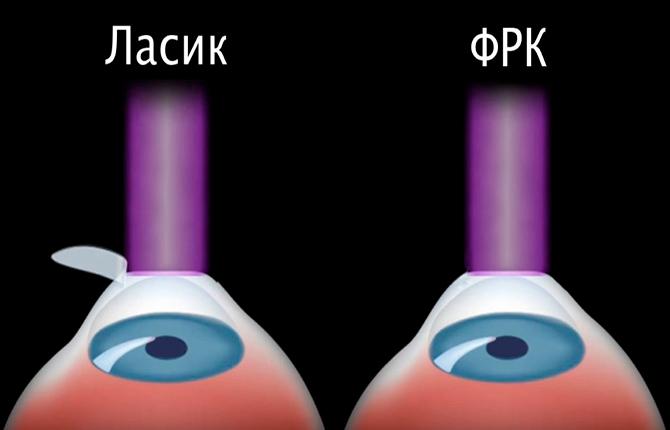 Операция на глаза методом ФРК - эффективное устранение зрительных нарушений