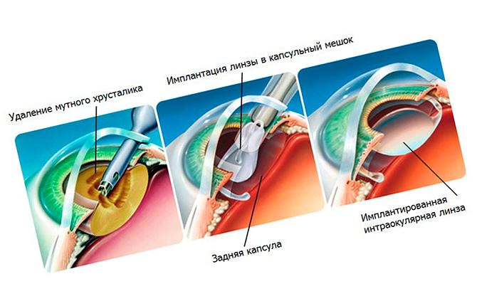 Операция по имплантации интраокулярной линзы