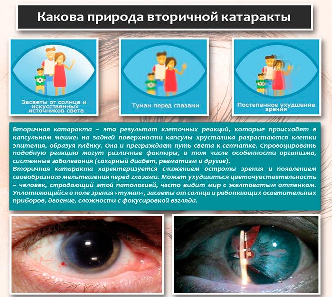 Природа вторичной катаракты