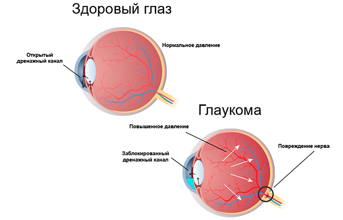 Глаз при глаукоме