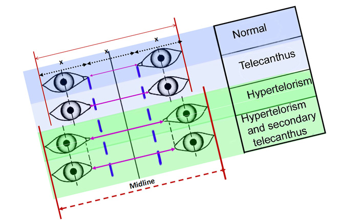 Гипертелоризм глаз виды