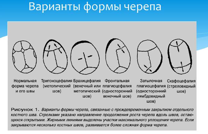 Варианты формы черепа