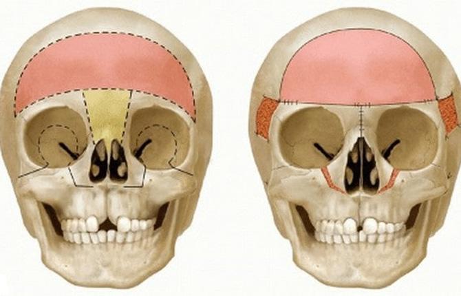 Гипертелоризм глаз лечение