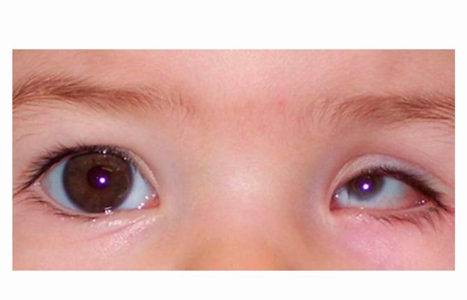 На оба глазных яблока аномалия распространяется намного реже, чем на одно