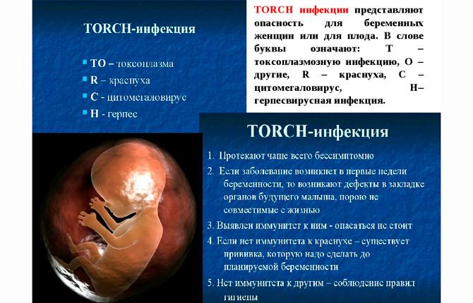 TORCH-инфекции