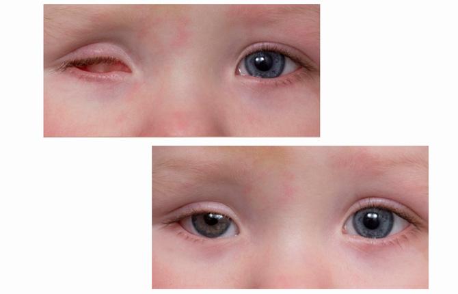 Что такое микрофтальм глаз - эффективные методы лечения