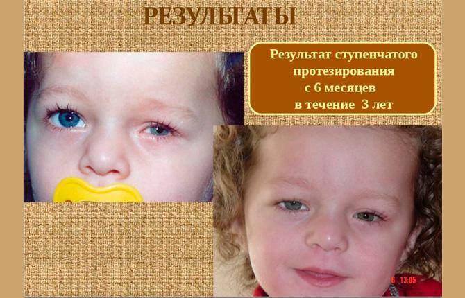 Результат ступенчатого протезирования глаза