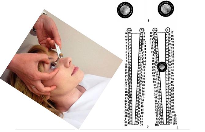 Тонометрия глаза