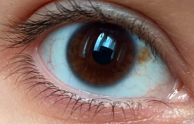 Желтое пятнышко в глазу